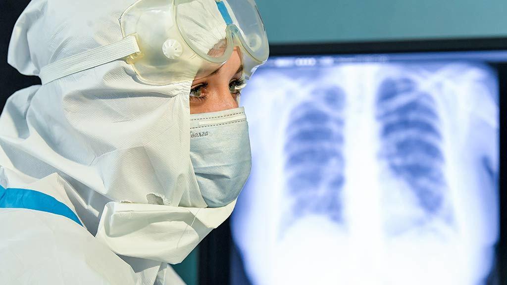Российские врачи заметили неожиданное свойство коронавируса