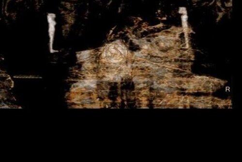 Впервые найдена древнеегипетская мумия беременной женщины