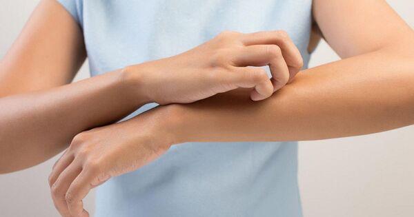 Почему чешется тело ноги руки роллер золотой для лица